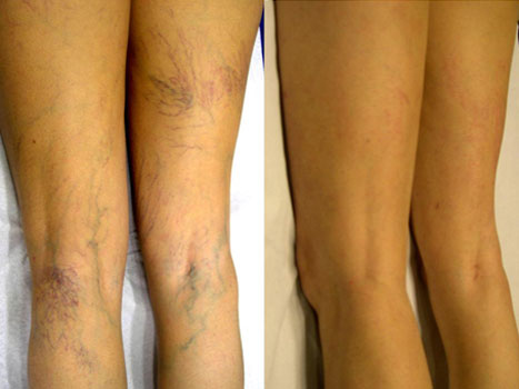 antes-despues-varices