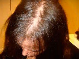 sintomas-alopecia-androgenica-femenina