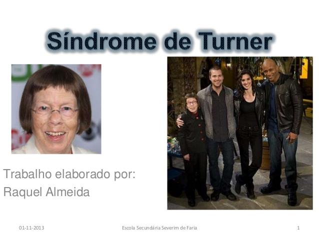 sndrome-de-turner-1-638
